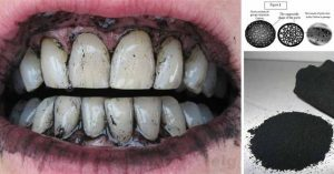 Trắng răng hiệu quả