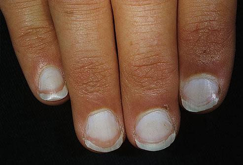 những dấu hiệu bất thường ở móng tay, nhung dau hieu bat thuong o mong tay